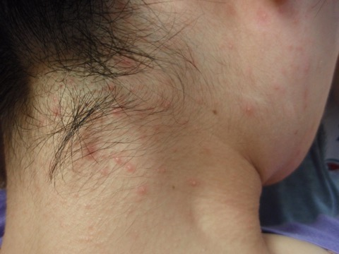 マラセチア毛包炎